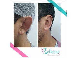 Clinica Bellezze - Otoplastia
