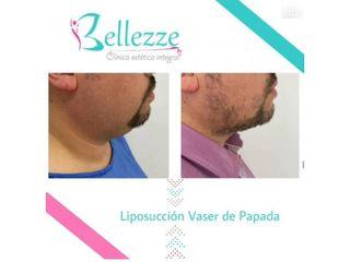 Clinica Bellezze - Lipossución vaser de papada