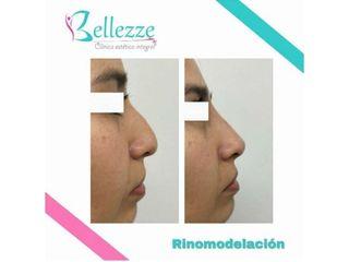 Clinica Bellezze - Rinomodelación