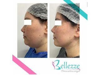 Clinica Bellezze - Lipossución de papada