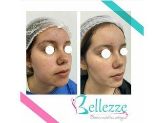 Clinica Bellezze - Bolas de bichat