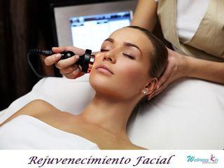 rejuvenecimiento-facial con Radiofrecuencia