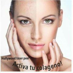 Hollywood Peel, Rejuvenece