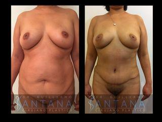 Abdominoplastia + lipoescultura