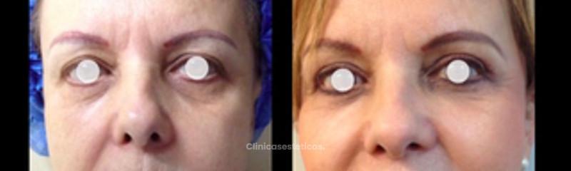 Lifting Facial + Blefaroplastia