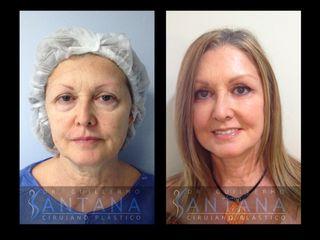 Lifting de cara y cuello + Blefaroplastia