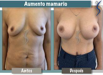 Aumento mamario