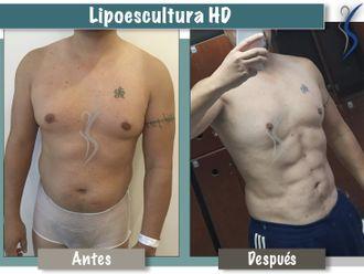 Lipoescultura-650239
