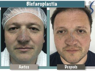 Blefaroplastia-660888