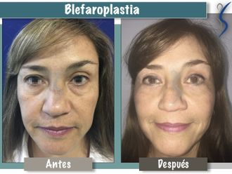 Blefaroplastia-660892
