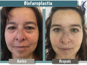 Blefaroplastia-660894