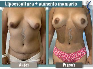 Aumento mamario y Lipoescultura