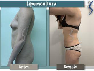 Lipoescultura-660905