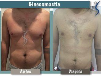 Ginecomastia-660908