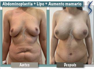 Abdominoplastia y aumento mamario