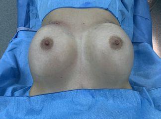 Aumento den mamas