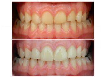 Limpieza dental - 497838
