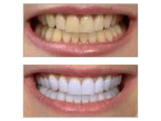 Blanquear dientes-498766
