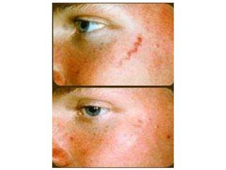 Borrar cicatrices