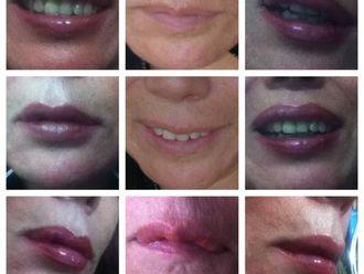 Aumento de labios-522802