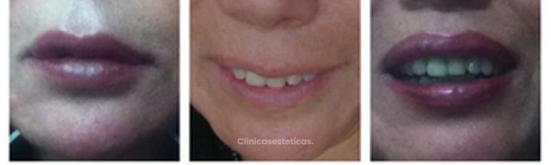 Relleno de labios con Volbella
