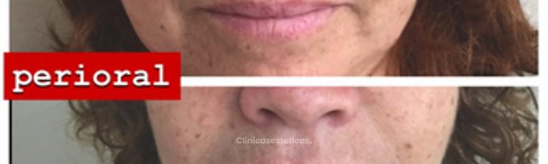 Rejuvenecimiento peri oral