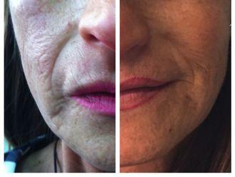 Rejuvenecimiento facial-522815