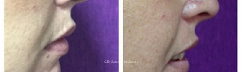 Rinomodelación y mentoplastía ac. hialurónico 1.8 cc