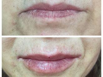 Aumento de labios-560917