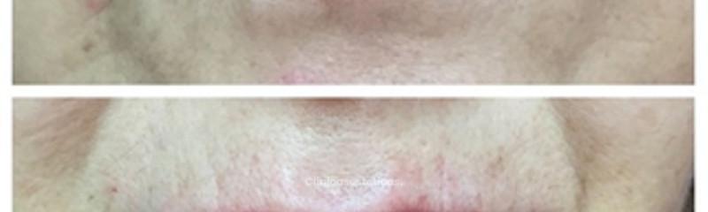 Perfilado de labios ac. hialurónico 1 cc