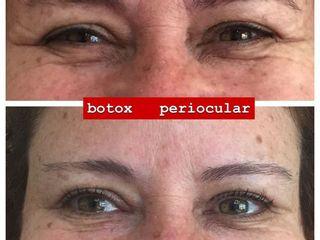 Bótox periocular