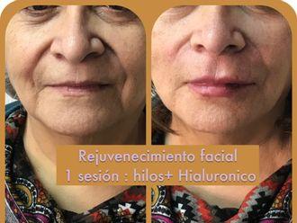 Rejuvenecimiento facial - 624663