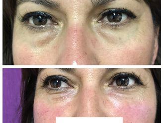 Tratamiento de ojeras - 639571