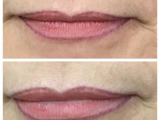 Aumento de labios-646350