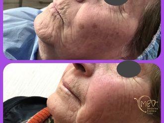 Dermatología estética-646399