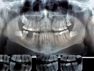 Implantes dentales - 640668