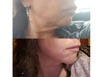 Liposucción - 640734
