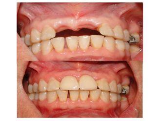 Implantes dentales - 500113