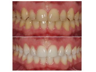 Limpieza dental - 500115