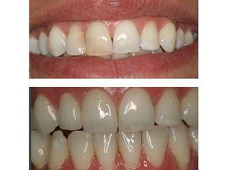 Blanquear dientes-487030