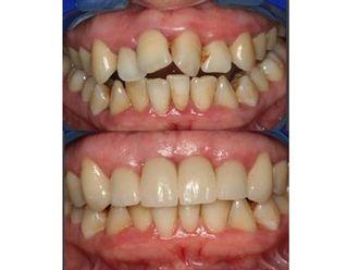 Ortodoncia-487031