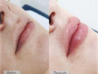 Aumento de labios-687115