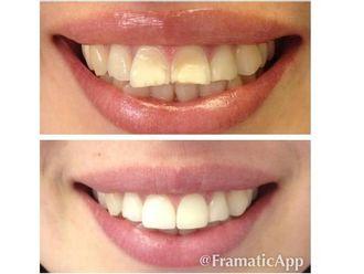 Ortodoncia-522710