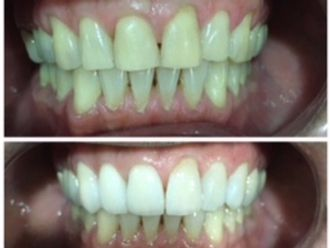 Blanquear dientes-569481