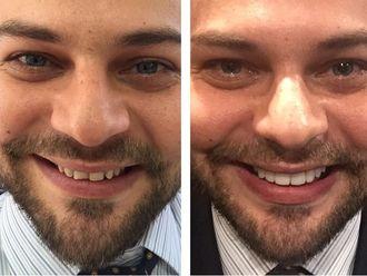 Blanquear dientes-569549