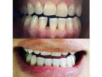 Estética dental-576879
