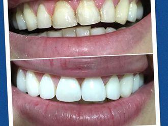 Blanquear dientes-588488