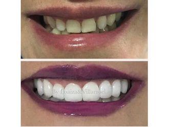 Blanquear dientes-595678