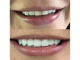 Blanquear dientes-595679