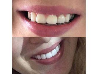Estética dental-595681